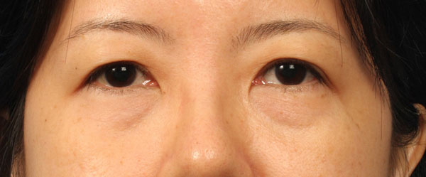 Eye bag or eye-pouch is the dropsy dark part under the lower eyelid