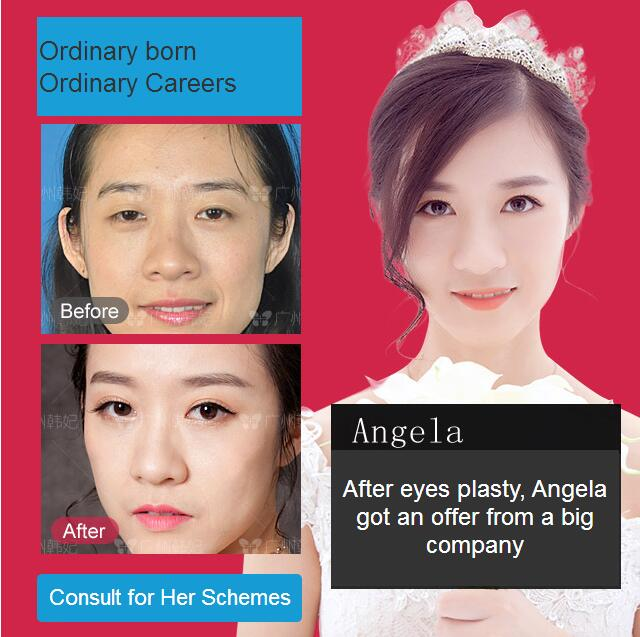 After eyes plasty, Angela got an offer from a big company