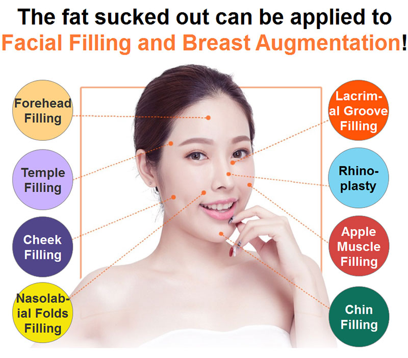 hanfei liposuction in china, face,neck,waist,abdomen,back,arms, legs cost 5000-20000rmb