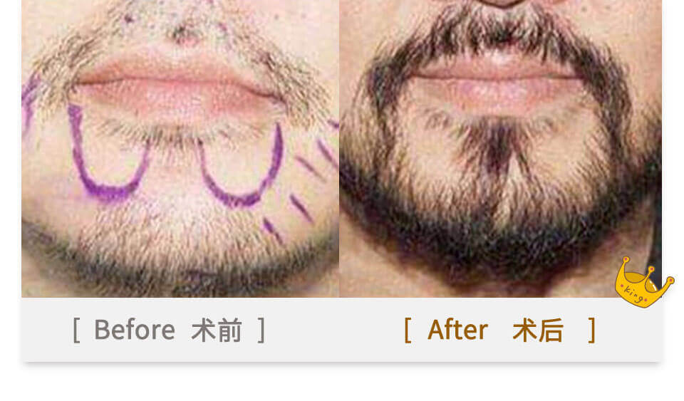 beards plant in china before and after