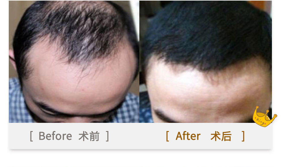 men hair plant before & after