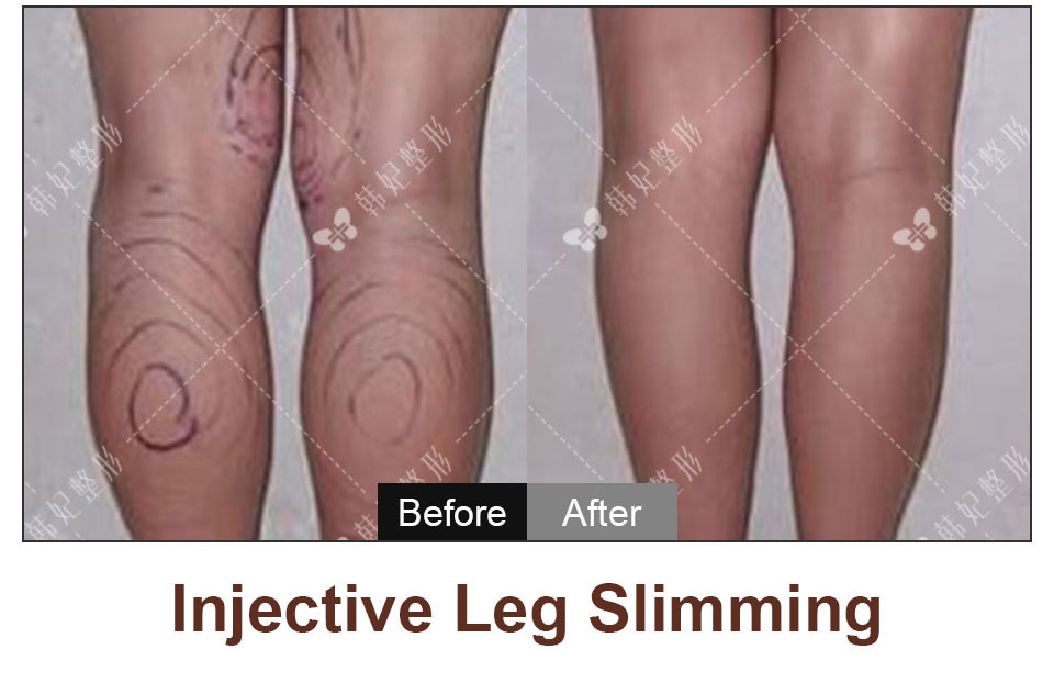 legs liposuction or injective leg slimming