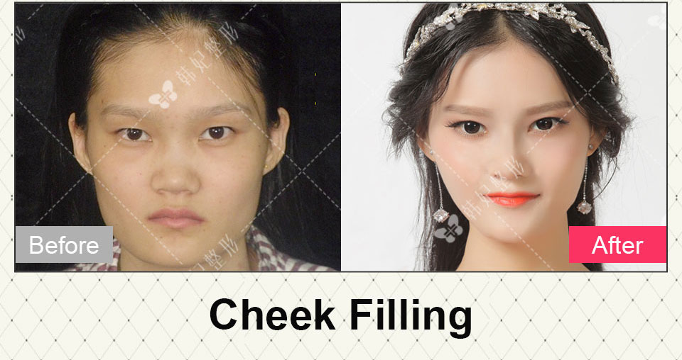 cheek filling and nose job