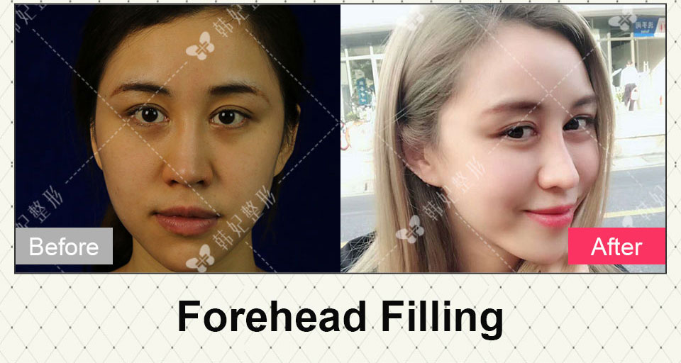 forehead filling