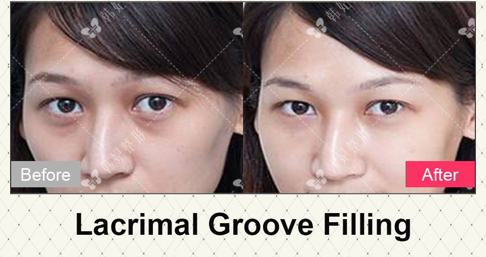 lacrimal groove filling